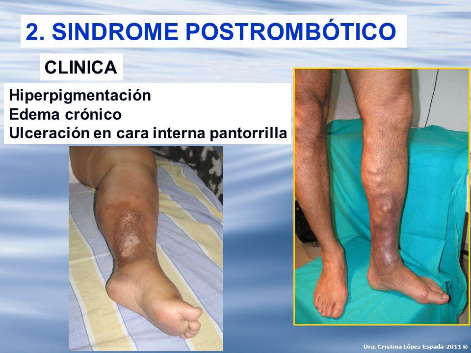 2. SINDROME POSTROMBÓTICO CLINICA Hiperpigmentación Edema crónico Ulceración en cara interna pantorrilla Dra. Cristina López Espada-2011 ®