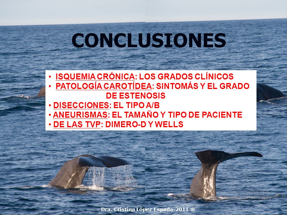 CONCLUSIONES Dra. Cristina López Espada-2011 ® ISQUEMIA CRÓNICA: LOS GRADOS CLÍNICOS PATOLOGÍA CAROTÍDEA: SINTOMÁS Y EL GRADO DE ESTENOSIS DISECCIONES