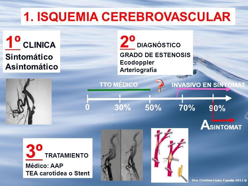 Agosto 2011 Varón de 50 años con episodios repetidos de isquemia cerebral transitoria consistente en pérdida de fuerza y paresias en brazo y pierna derecha, con amaurosis fugaz de ojo izquierdo.