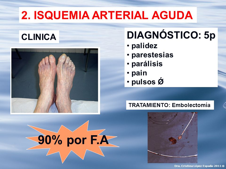2. ISQUEMIA ARTERIAL AGUDA CLINICA DIAGNÓSTICO: 5p palidez parestesias parálisis pain pulsos Ǿ TRATAMIENTO: Embolectomía 90% por F.A Dra. Cristina Lóp