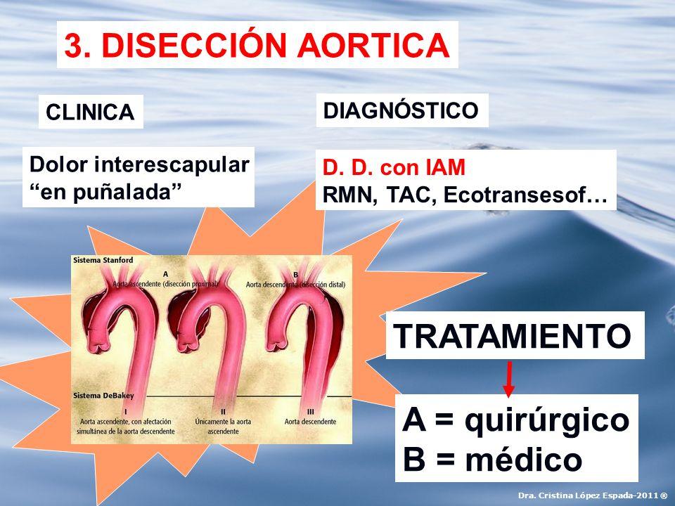 3. DISECCIÓN AORTICA CLINICA DIAGNÓSTICO TRATAMIENTO Dolor interescapular en puñalada D. D. con IAM RMN, TAC, Ecotransesof… A = quirúrgico B = médico