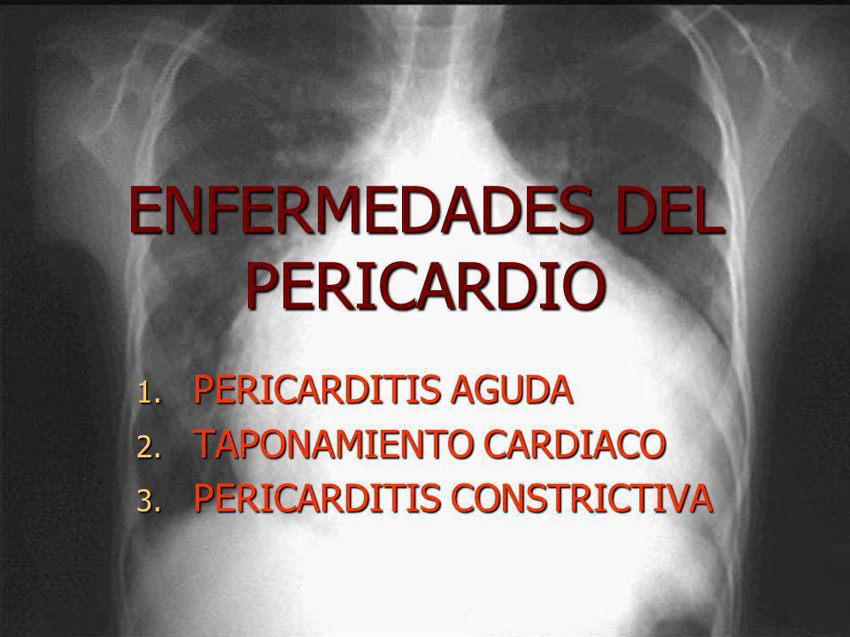 ENFERMEDADES DEL PERICARDIO 1. PERICARDITIS AGUDA 2. TAPONAMIENTO CARDIACO 3. PERICARDITIS CONSTRICTIVA