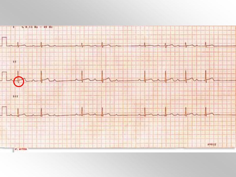 Pregunta 34 Un señor de 83 años asintomático se realiza un ECG (figura) previo a intervención de cataratas. Ante la vista del mismo, ¿qué opción es la