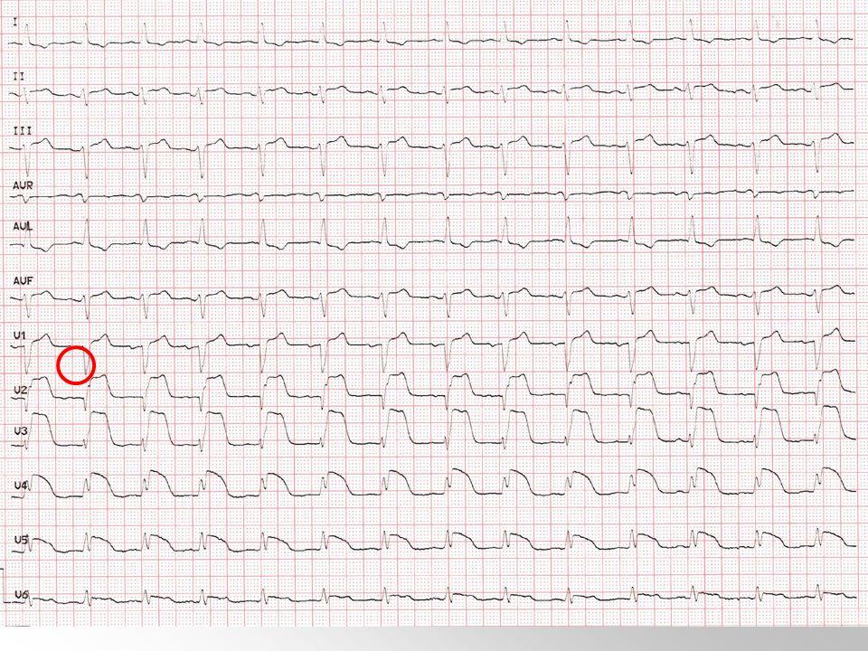 Pregunta 35. Una mujer hipertensa mal controlada e hiperlipémica, de 63 años de edad, es llevada a Urgencias por presentar cuadro disminución brusca d