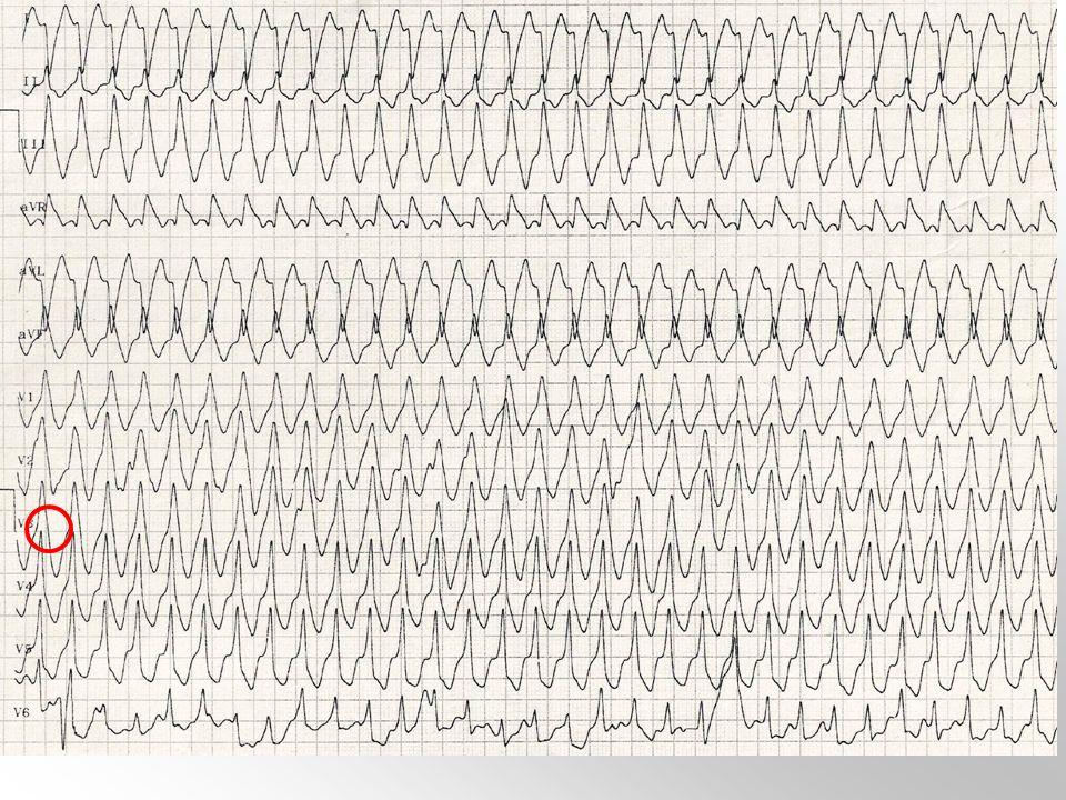 Pregunta 27. Un paciente, con antecedentes personales de infarto agudo de miocardio hace 4 años y disfunción sistólica de ventrículo izquierdo con FE