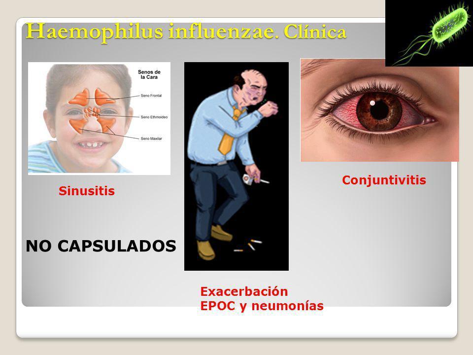 Haemophilus influenzae. Clínica Sinusitis Exacerbación EPOC y neumonías Conjuntivitis NO CAPSULADOS