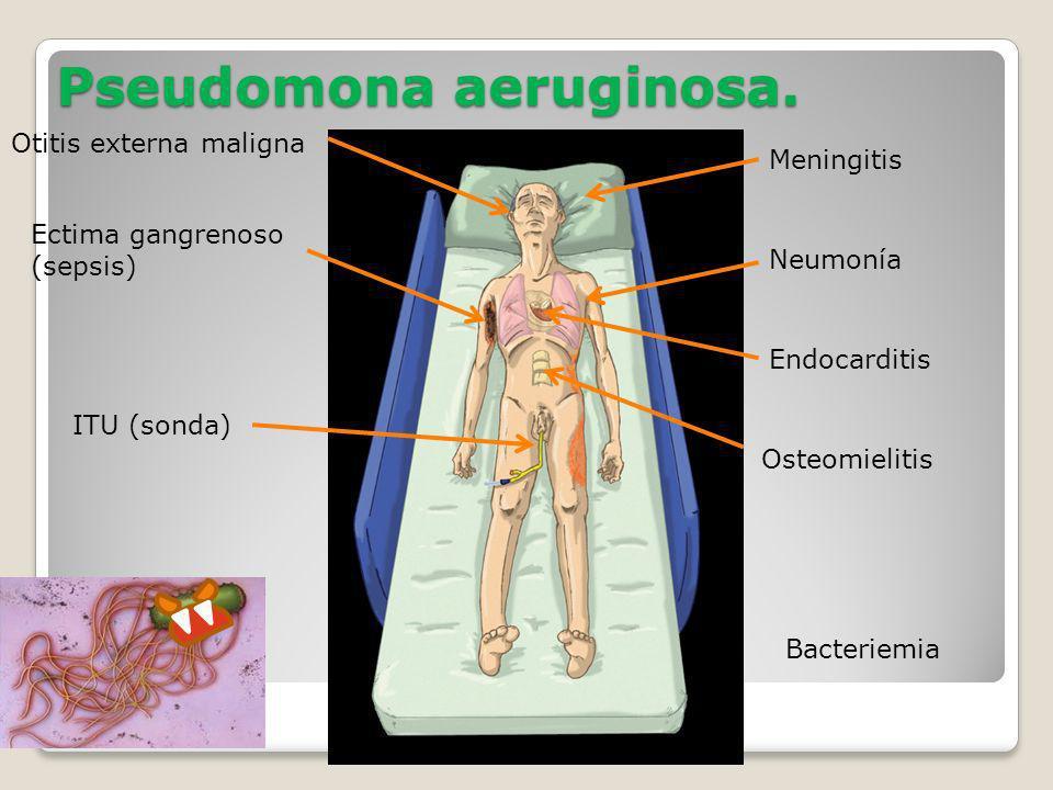 Pseudomona aeruginosa. Meningitis Neumonía Endocarditis Osteomielitis Bacteriemia Otitis externa maligna Ectima gangrenoso (sepsis) ITU (sonda)