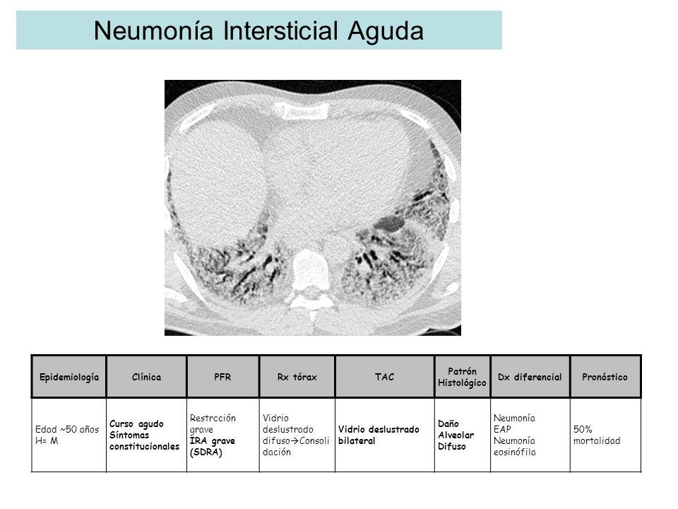 Neumonía Intersticial Aguda EpidemiologíaClínicaPFRRx tóraxTAC Patrón Histológico Dx diferencialPronóstico Edad ~50 años H= M Curso agudo Síntomas con