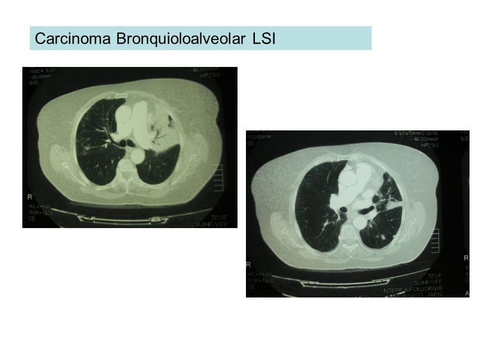 Carcinoma Bronquioloalveolar LSI