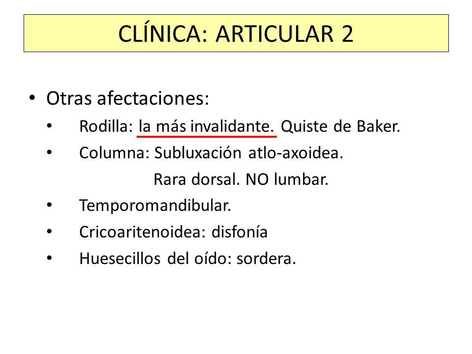 CLÍNICA: ARTICULAR 2 Otras afectaciones: Rodilla: la más invalidante. Quiste de Baker. Columna: Subluxación atlo-axoidea. Rara dorsal. NO lumbar. Temp