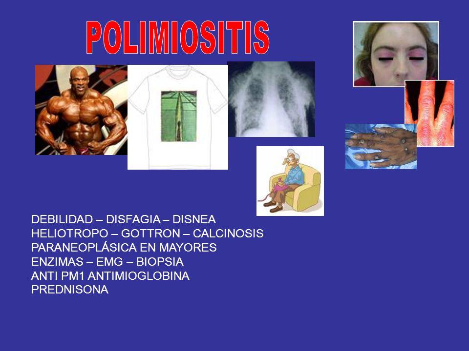 DEBILIDAD – DISFAGIA – DISNEA HELIOTROPO – GOTTRON – CALCINOSIS PARANEOPLÁSICA EN MAYORES ENZIMAS – EMG – BIOPSIA ANTI PM1 ANTIMIOGLOBINA PREDNISONA