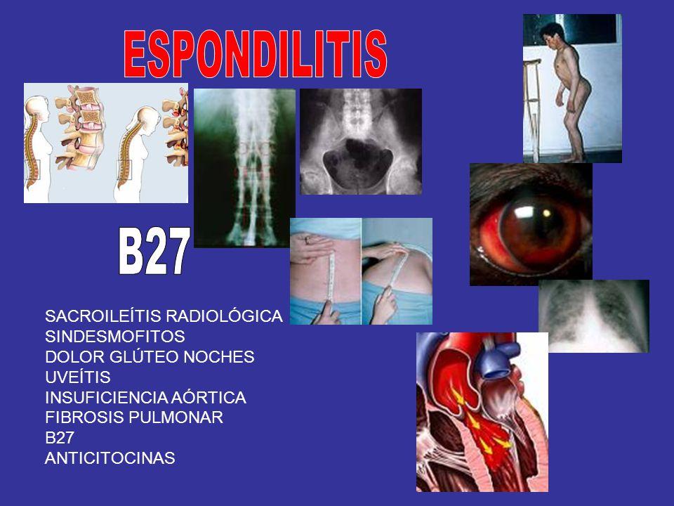 SACROILEÍTIS RADIOLÓGICA SINDESMOFITOS DOLOR GLÚTEO NOCHES UVEÍTIS INSUFICIENCIA AÓRTICA FIBROSIS PULMONAR B27 ANTICITOCINAS