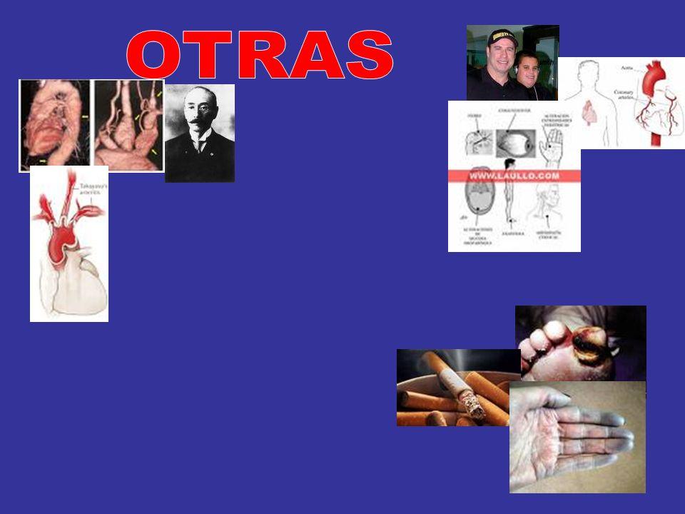 LOFGREN – HEERFORDT NEUMONÍA – ADENOPATÍAS HILIARES ADENOPATÍAS HIPERCALCEMIA LITIASIS RENAL HEPATOESPLENOMEGALIA MÉDULA ÓSEA ECA CORTICOIDES