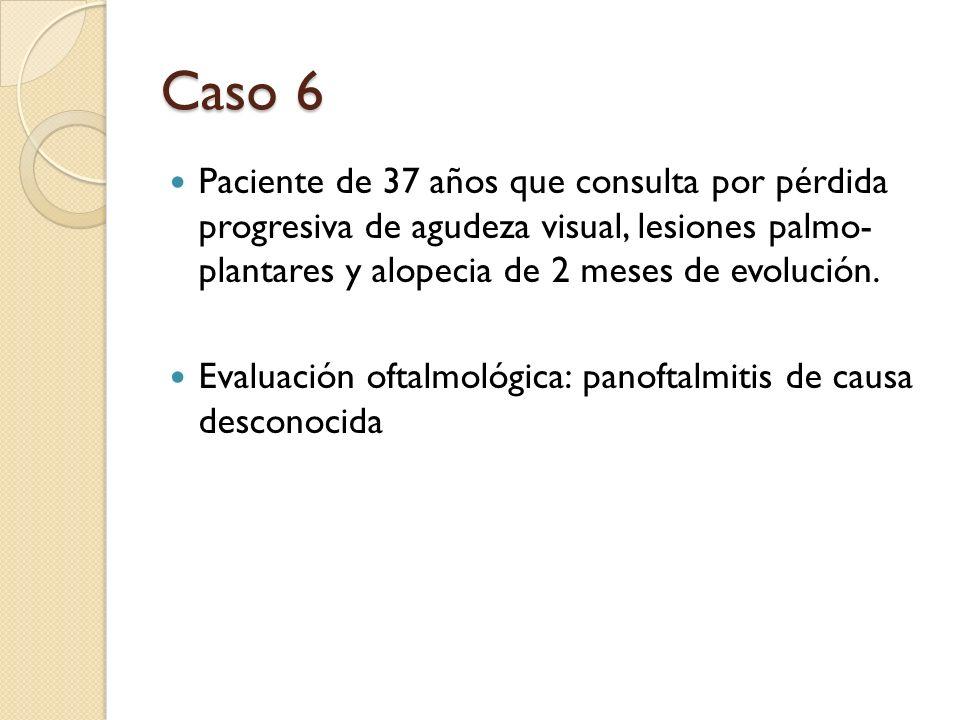 Que diagnóstico le parece más probable: Penfigo vegetante-Eritema polimorfo Psoriasis ostráceo-Liquen plano Lupus cutáneo hipertrófico-Eccema agudo Ninguno de los anteriores