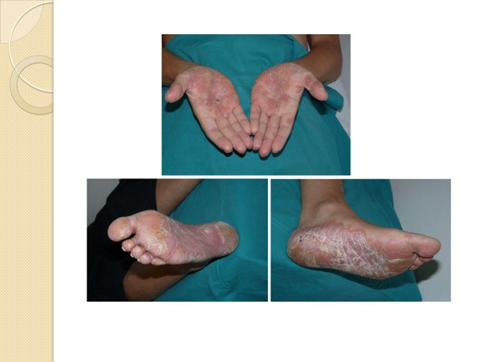 Cuál es el diagnóstico más probable: Vogt-Koyanagi-Harada syndrome (Alopecia, oftalmitis y lesiones cutáneas) Enfermedad infecciosa Psoriasis palmo-plantar asociado a oftalmitis Enfermedad de Beçhet