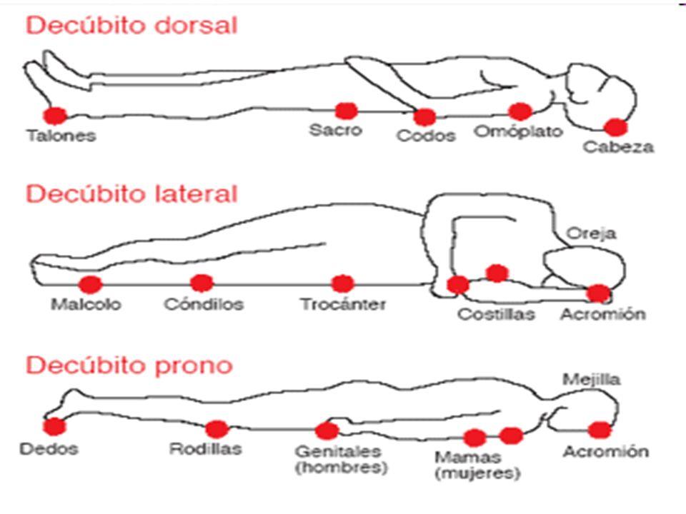 FACTORES QUE CONTRIBUYEN… 1. Inmovilización prolongada y fuerzas de cizallamiento, fricción y roce 2. Humedad (incontinencias) 3. Pérdidas de sensibil