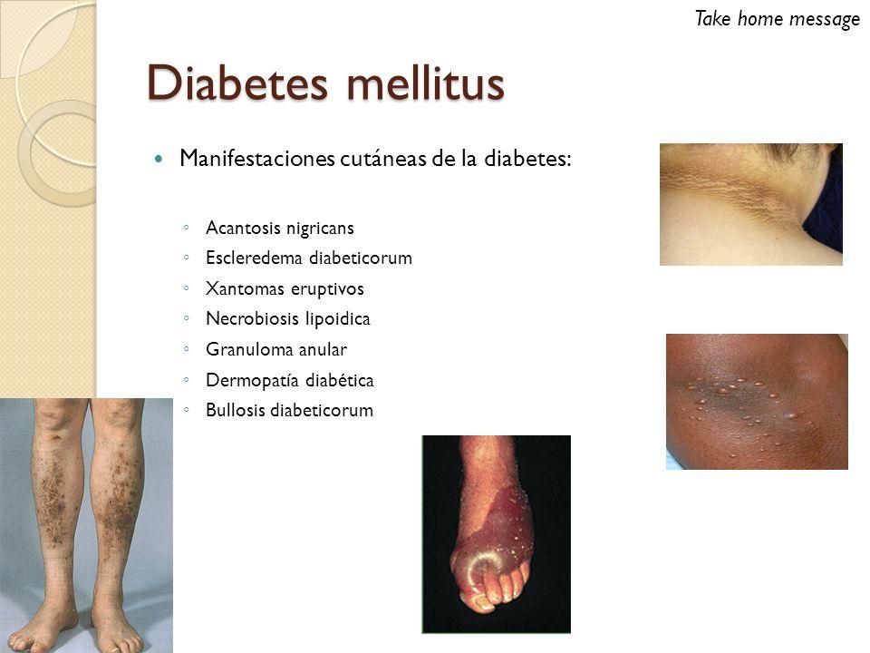 Granuloma anular Asociación con diabetes más débil que necrobiosis lipoídica 10% GA localizado 21% GA generalizado Tratamiento suele ser poco satisfactorio