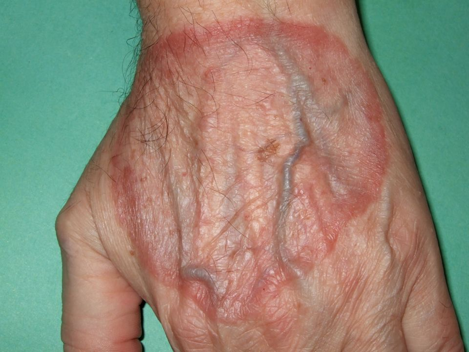 Cuál es el diagnóstico más probable: Granuloma anular Tiña de la mano Tiña incognito Dermatosis facticia