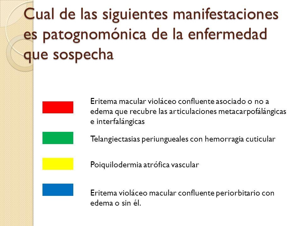 Cual de las siguientes manifestaciones es patognomónica de la enfermedad que sospecha Eritema macular violáceo confluente asociado o no a edema que re