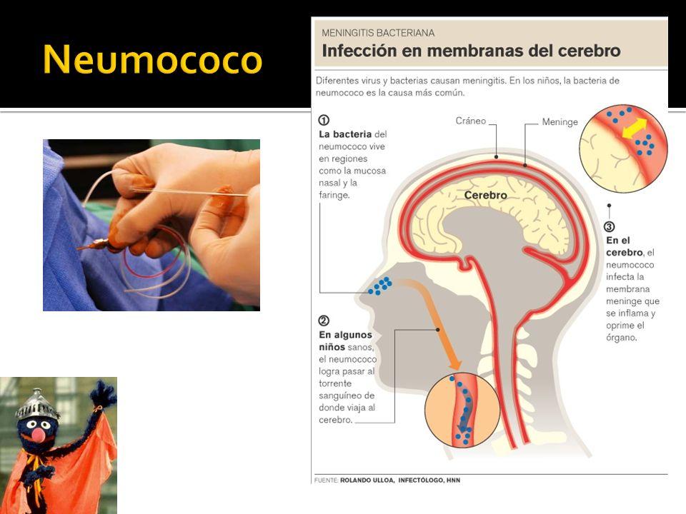 NEUMONÍA Postgripal (2 causa tras neumococo), fibrosis quística (2 causa tras pseudomona), émbolos sépticos, intubados/UCI ( 1 causa asociada a ventilación mecanica) SD SHOCK TÓXICO (toxina TSST) Chicas con tampones.