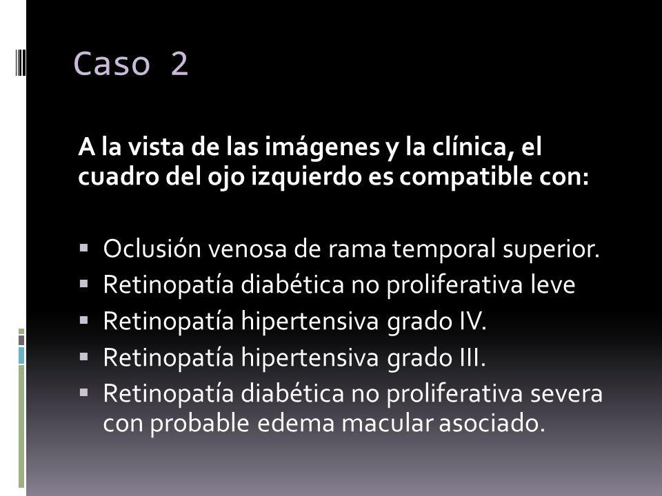 A la vista de las imágenes y la clínica, el cuadro del ojo izquierdo es compatible con: Oclusión venosa de rama temporal superior. Retinopatía diabéti