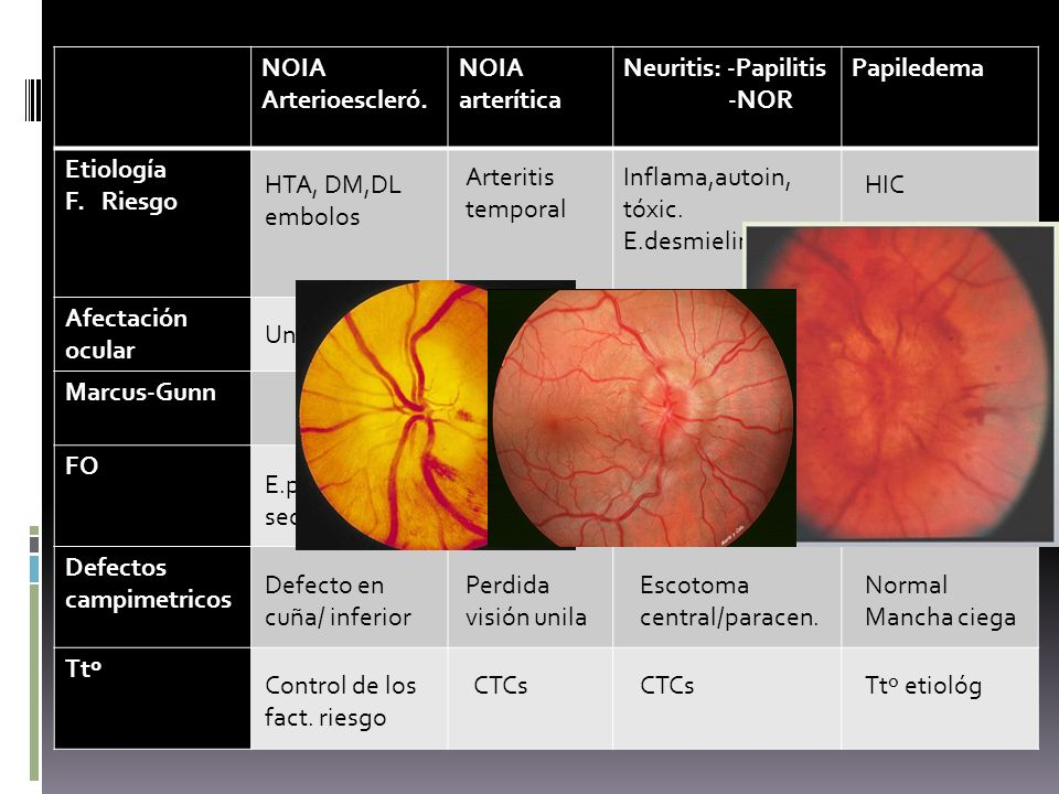 NOIA Arterioescleró. NOIA arterítica Neuritis: -Papilitis -NOR Papiledema Etiología F. Riesgo Afectación ocular Marcus-Gunn FO Defectos campimetricos