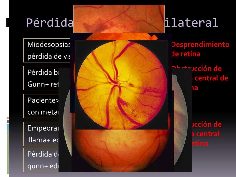 Pérdida de visión unilateral Miodesopsias + fotopsias con pérdida de visión periférica Desprendimiento de retina Pérdida brusca de visión+ marcus Gunn