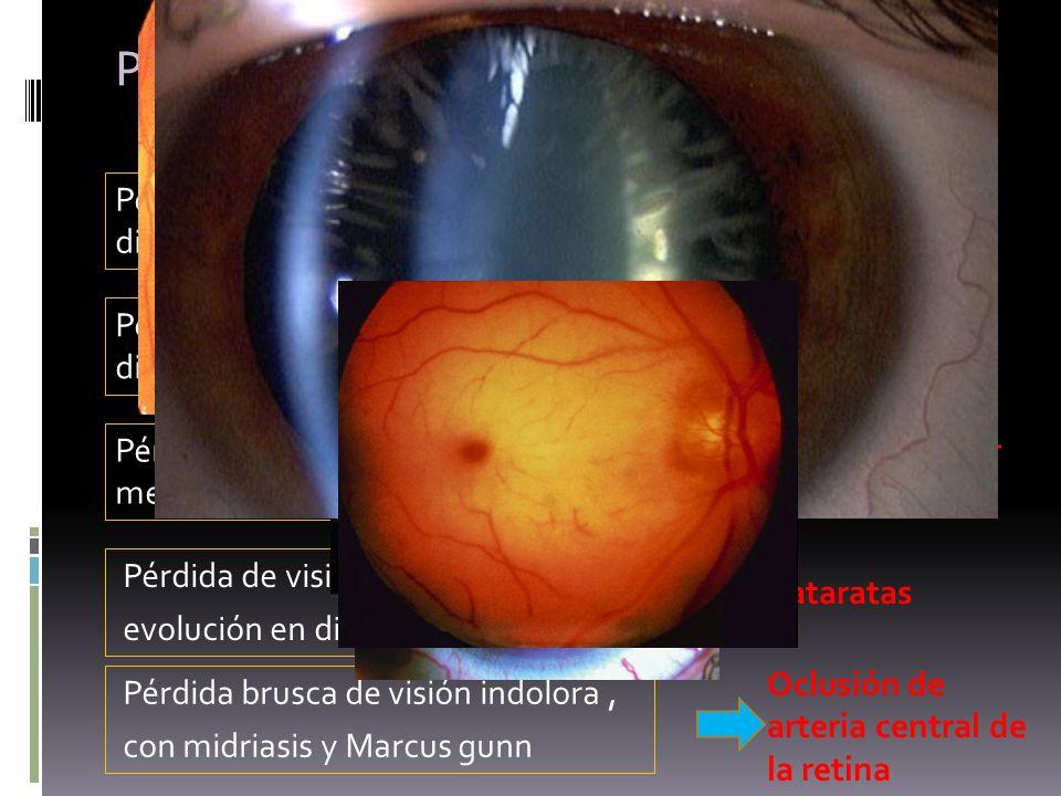 Perdidas de visión en diabéticos Pérdida brusca de visión en diabético sin dolor Hemovitreo Pérdida de visión aguda en diabético con dolor Glaucoma ne