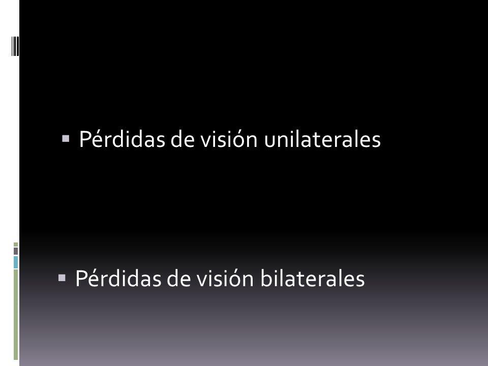 Pérdidas de visión bilaterales Pérdidas de visión unilaterales