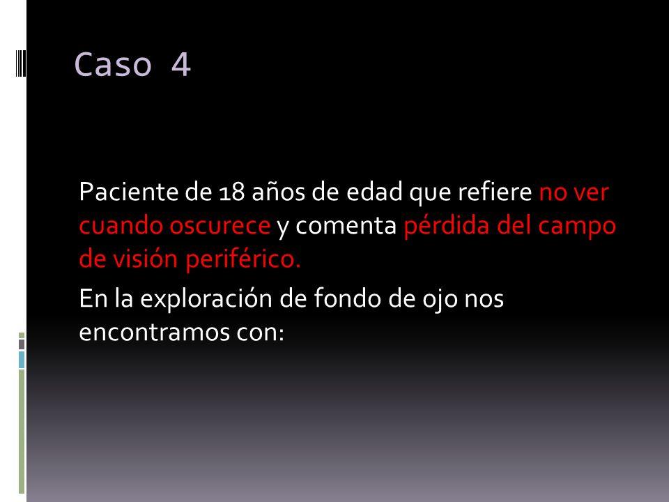 Caso 4 Paciente de 18 años de edad que refiere no ver cuando oscurece y comenta pérdida del campo de visión periférico. En la exploración de fondo de