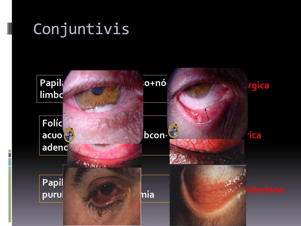 Conjuntivis Papilas+exudado mucoso+nódulos limbo+picor C. alérgica Folículos+secreción acuosa+hemorragias subcon+ adenopatias C. Vírica Papilas+secrec