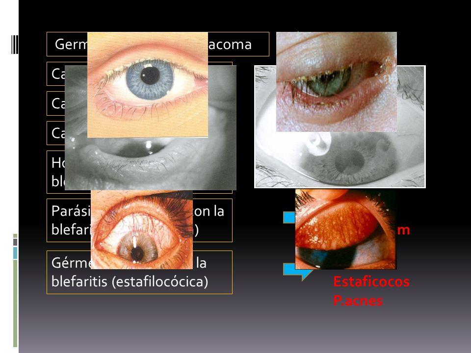 Causa +% de C. bacteriana S. Aureus Germen productor de tracoma Clamidia Causa +% de C. vírica Adenovirus Causa +% de C. neonatal Clamidia Hongo relac