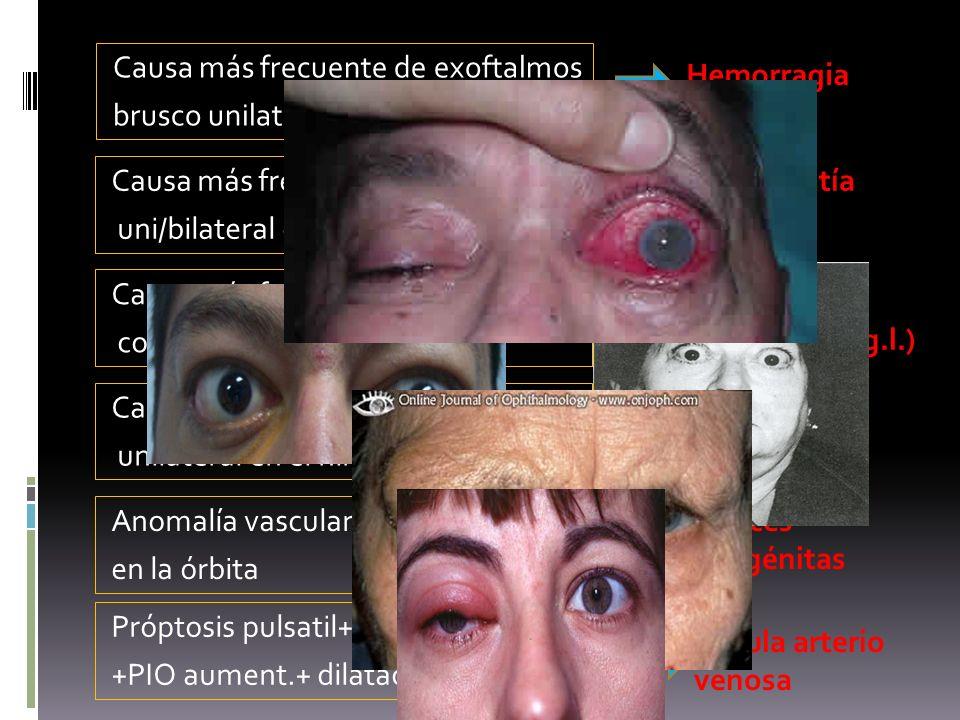 Causa más frecuente de exoftalmos brusco unilateral Hemorragia orbitaria Causa más frecuente de exoftalmos uni/bilateral en adulto Orbitopatía tiroide