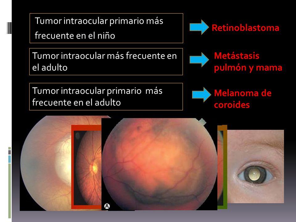 Tumor intraocular primario más frecuente en el niño Retinoblastoma Tumor intraocular más frecuente en el adulto Metástasis pulmón y mama Tumor intraoc