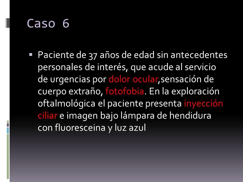 Caso 6 Paciente de 37 años de edad sin antecedentes personales de interés, que acude al servicio de urgencias por dolor ocular,sensación de cuerpo ext