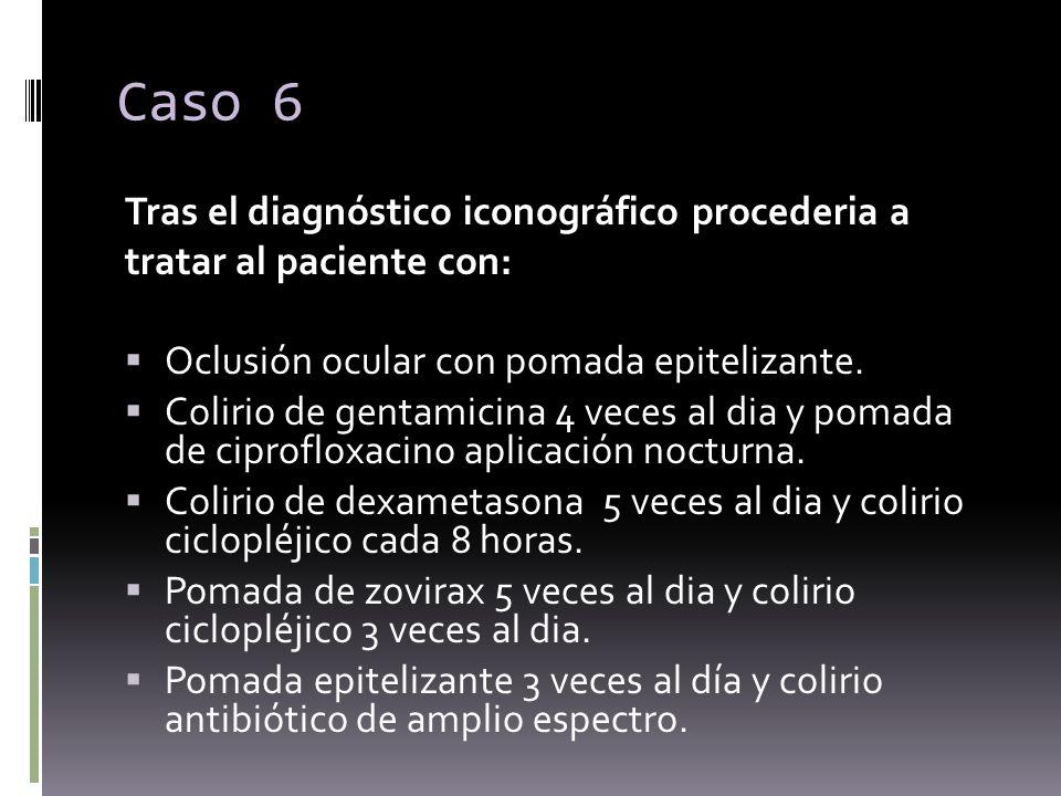Tras el diagnóstico iconográfico procederia a tratar al paciente con: Oclusión ocular con pomada epitelizante. Colirio de gentamicina 4 veces al dia y
