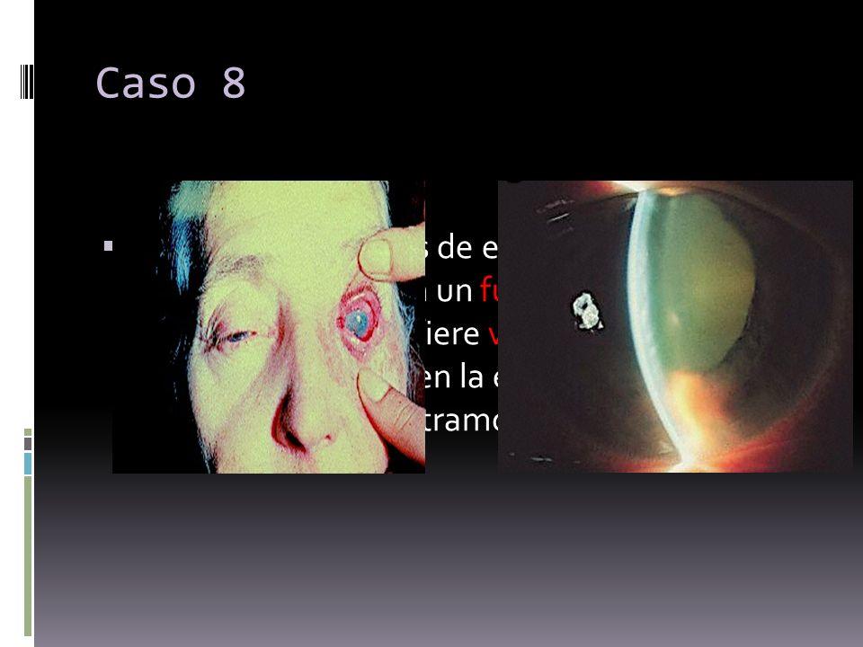 Caso 8 Paciente de 68 años de edad que acude a nuestro servicio con un fuerte dolor ocular en su ojo izquierdo, refiere visión borrosa así como halos
