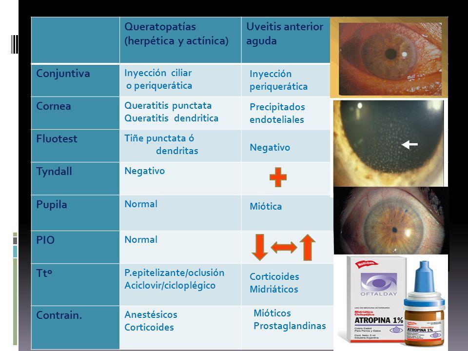 Queratopatías (herpética y actínica) Uveitis anterior aguda Glaucoma ángulo cerrado Conjuntiva Inyección ciliar o periquerática Inyección mixta Cornea