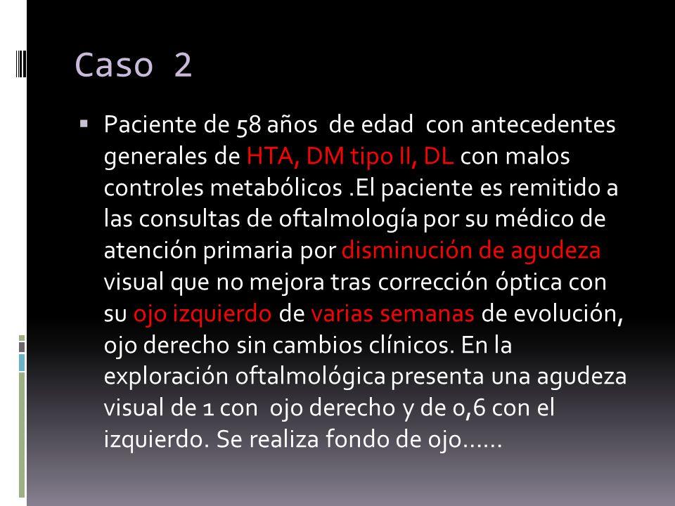 Caso 2 Paciente de 58 años de edad con antecedentes generales de HTA, DM tipo II, DL con malos controles metabólicos.El paciente es remitido a las con