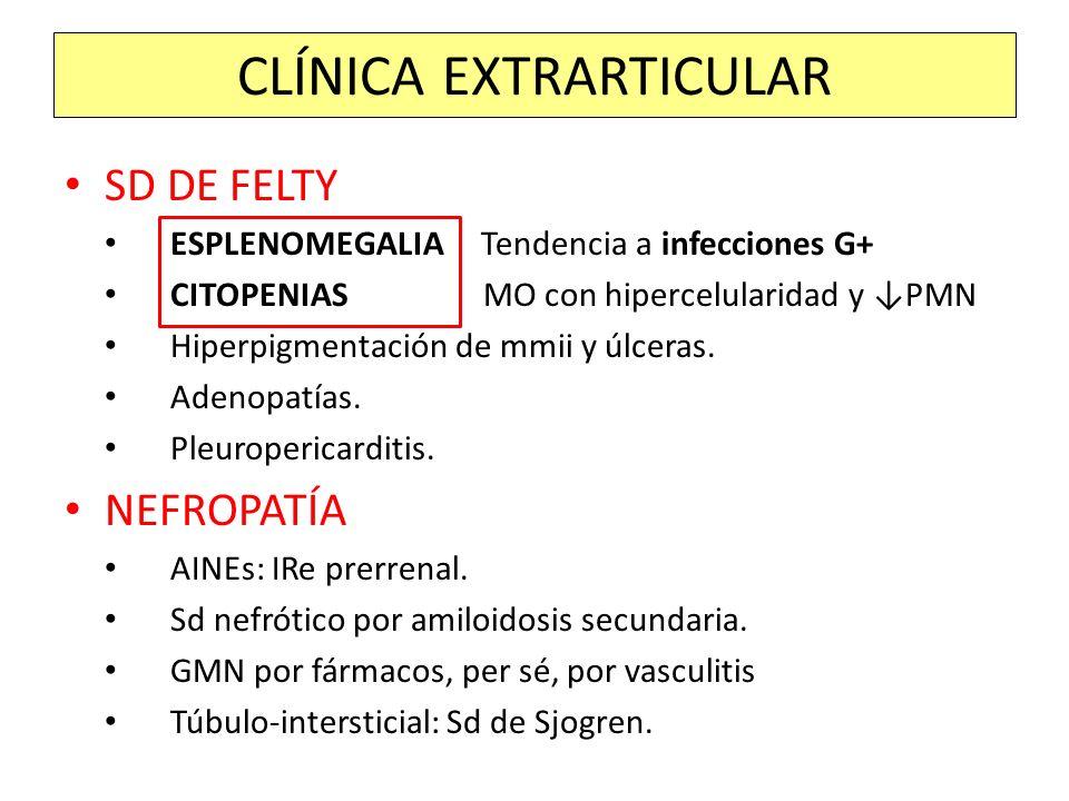 SD DE FELTY ESPLENOMEGALIA Tendencia a infecciones G+ CITOPENIAS MO con hipercelularidad y PMN Hiperpigmentación de mmii y úlceras. Adenopatías. Pleur