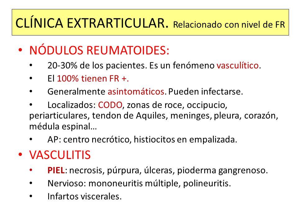 CLÍNICA EXTRARTICULAR. Relacionado con nivel de FR NÓDULOS REUMATOIDES: 20-30% de los pacientes. Es un fenómeno vasculítico. El 100% tienen FR +. Gene
