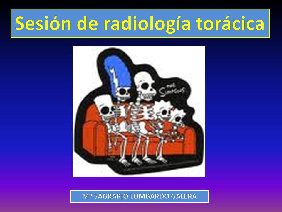 Tipos de lesiones extrapulmonares ENGROSAMIENTO SÓLIDO LOCALIZADO TBC Asbesto Mesotelioma DIFUSO: PAQUIPLEURITIS TBC Asbesto Empiema antiguo MESOTELIOMA