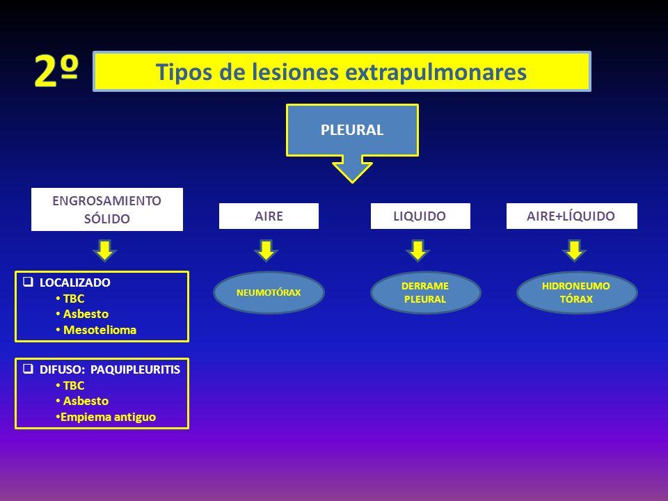 Tipos de lesiones extrapulmonares PLEURAL ENGROSAMIENTO SÓLIDO AIRELIQUIDOAIRE+LÍQUIDO NEUMOTÓRAX DERRAME PLEURAL HIDRONEUMO TÓRAX LOCALIZADO TBC Asbe