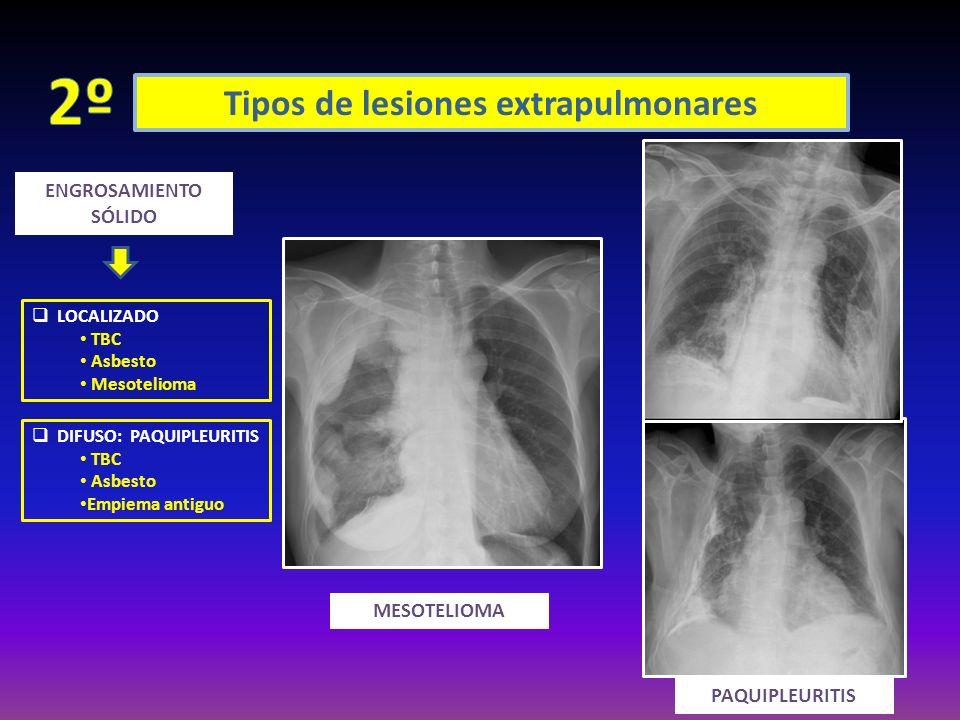 Tipos de lesiones extrapulmonares ENGROSAMIENTO SÓLIDO LOCALIZADO TBC Asbesto Mesotelioma DIFUSO: PAQUIPLEURITIS TBC Asbesto Empiema antiguo MESOTELIO