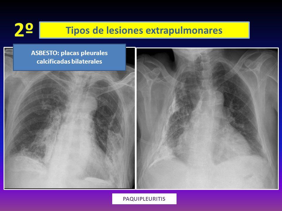 Tipos de lesiones extrapulmonares ENGROSAMIENTO SÓLIDO PAQUIPLEURITIS ASBESTO: placas pleurales calcificadas bilaterales