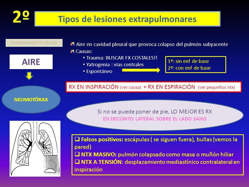 Tipos de lesiones extrapulmonares ENGROSAMIENTO SÓLIDO AIRE NEUMOTÓRAX Aire en cavidad pleural que provoca colapso del pulmón subyacente Causas: Traum