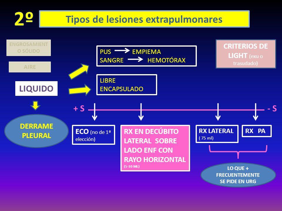 Tipos de lesiones extrapulmonares AIRE LIQUIDO DERRAME PLEURAL ENGROSAMIENT O SÓLIDO PUS EMPIEMA SANGRE HEMOTÓRAX LIBRE ENCAPSULADO CRITERIOS DE LIGHT