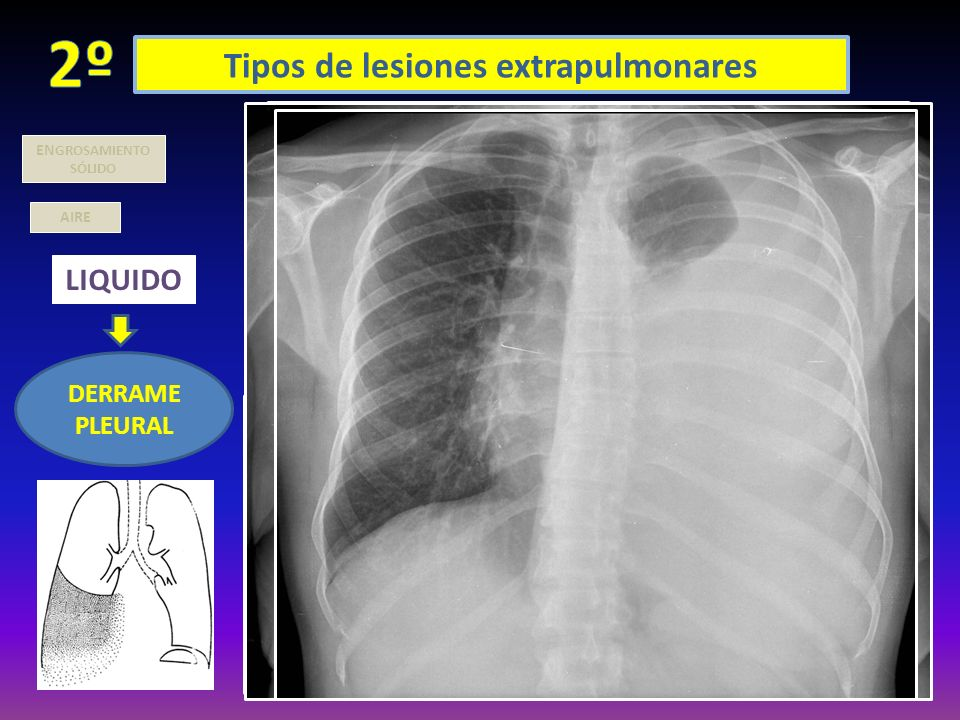 Tipos de lesiones extrapulmonares AIRE LIQUIDO DERRAME PLEURAL EN GROSAMIENTO SÓLIDO LIBRE: + fácil verlo en rx lateral ( segmento post ángulo costofr