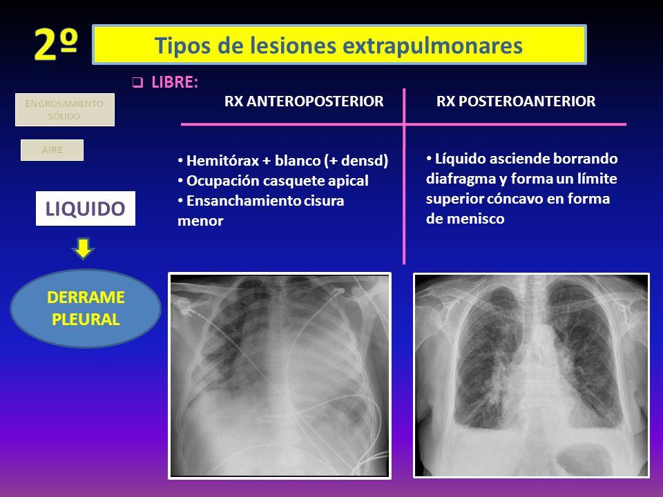 Tipos de lesiones extrapulmonares AIRE LIQUIDO DERRAME PLEURAL EN GROSAMIENTO SÓLIDO LIBRE: RX POSTEROANTERIORRX ANTEROPOSTERIOR Hemitórax + blanco (+