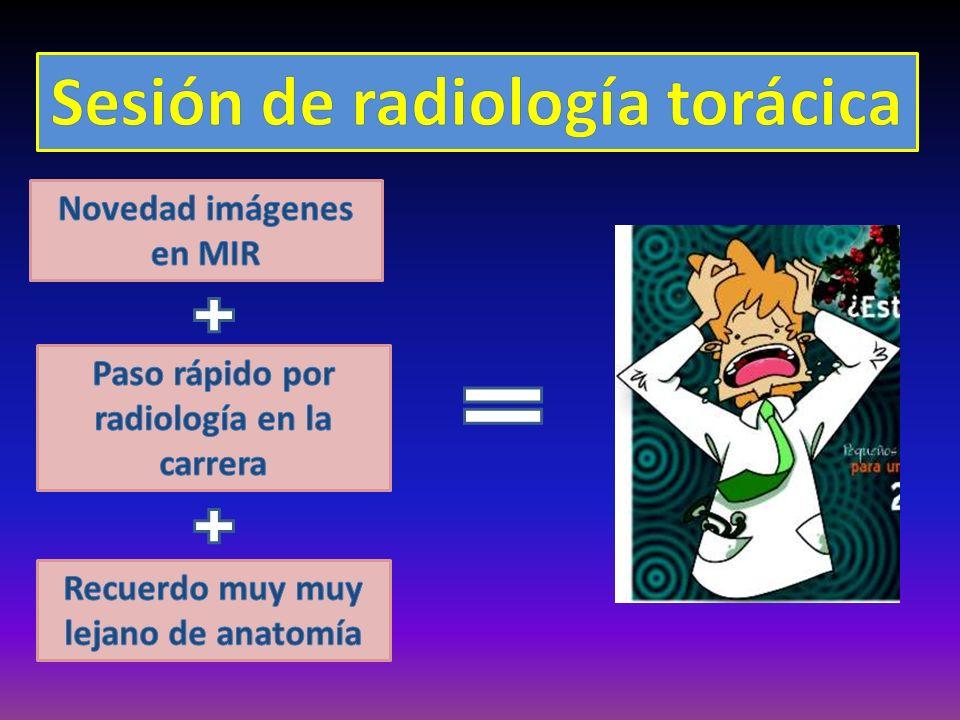 Tipos de lesiones extrapulmonares EXTRAPLEURAL PLEURAL MEDIASTÍNICAS MEDIASTINO ANTERIORMEDIASTINO MEDIOMEDIASTINO POSTERIOR